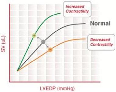 frank starling law cardiac output stroke volume vasoconstriction vasodilation