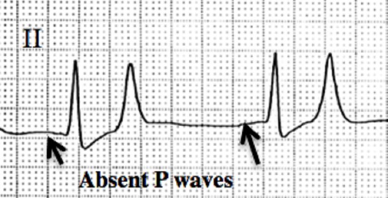 absent no P wave ecg hyperkalemia