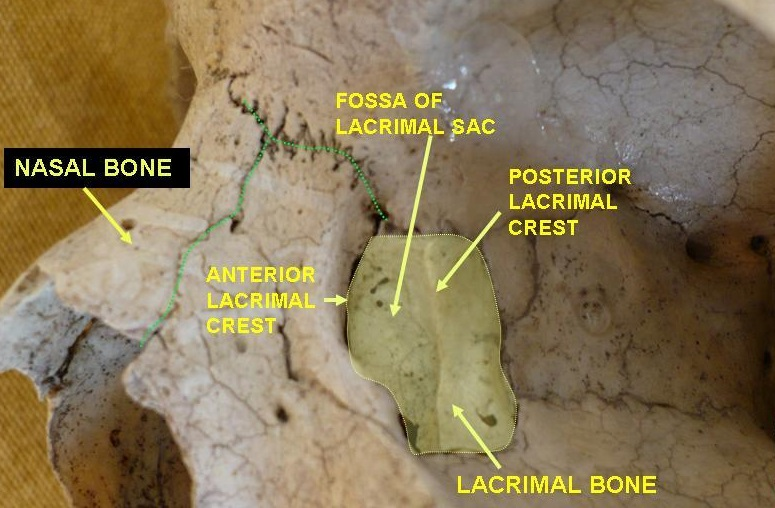 lacrimal bone skull labeled posterior crest sac anterior