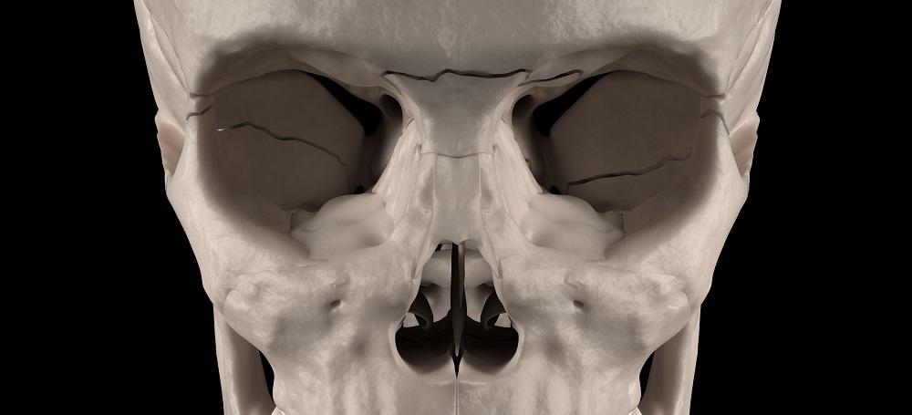 lafort III fracture maxillofacial craniofacial nasal sphenoid ethmoid lacrimal bone