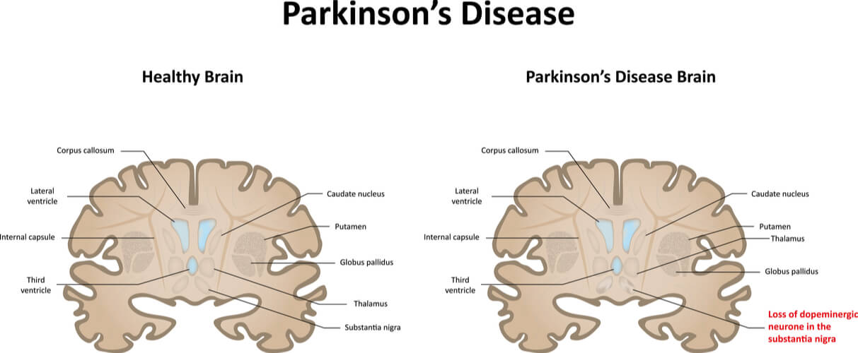 Vector comparing a healthy brain with a brain showed degraded substantia consistent with Parkinson's Disease