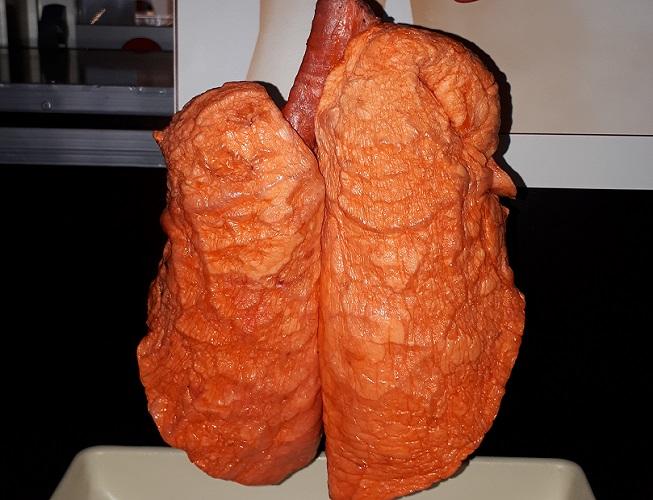 lungs cadaver blood supply vasodilation vasoconstriction
