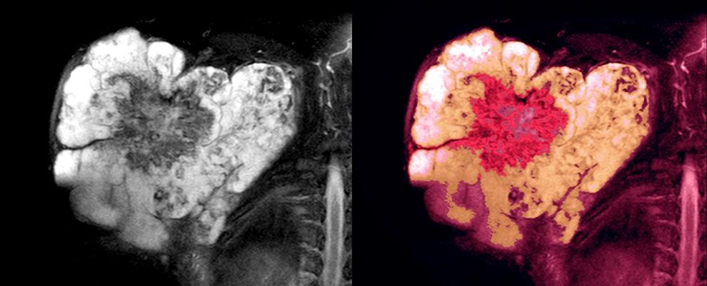 shoulder sarcoma cancer tumor