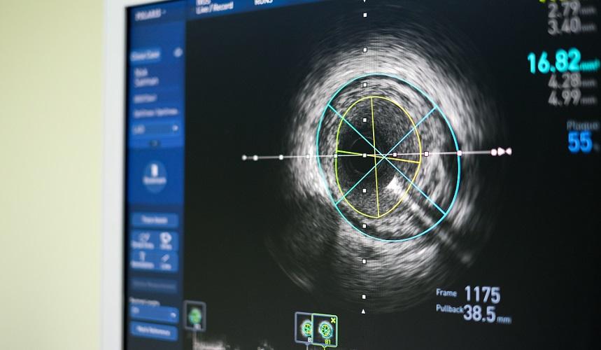 ultrasound artery vasoconstriction vasodilation