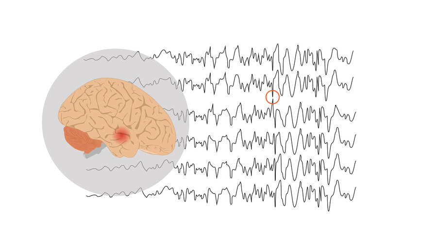Red spot at temporal lobe of brain indicating a seizure caused by epilepsy