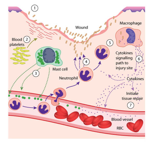 Stepwise process in which leukocytes are attracted to the site of inflammation