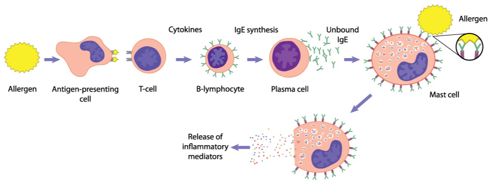 Stepwise process in which allergies are presented to helper T cells to activate B cells, releasing IgE and activating mast cells