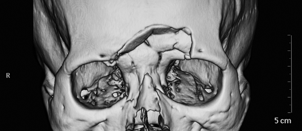 frontal bone fracture orbit nasal glabella