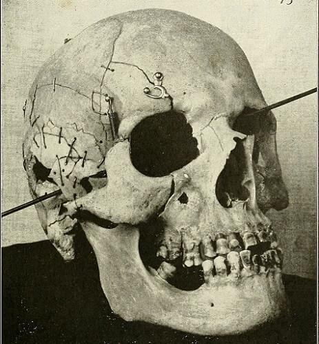 gunshot wound skull trajectory
