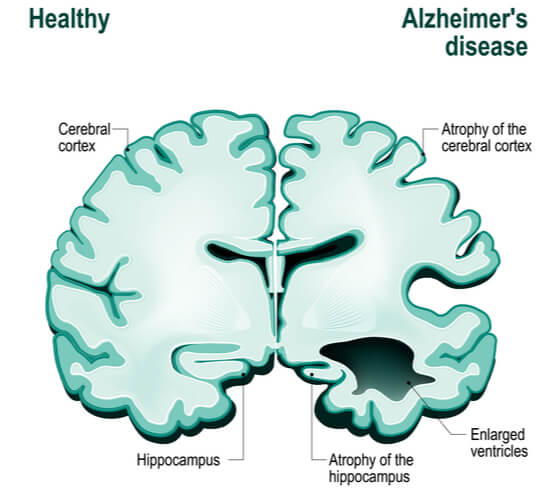 Side by side comparison of healthy vs alzheimer's brain, showing increased atrophy of the hippocampus and cerebrum