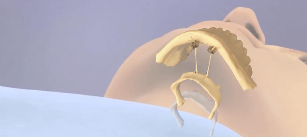 hyoid bone suspension mandible surgery osas sleep apnea