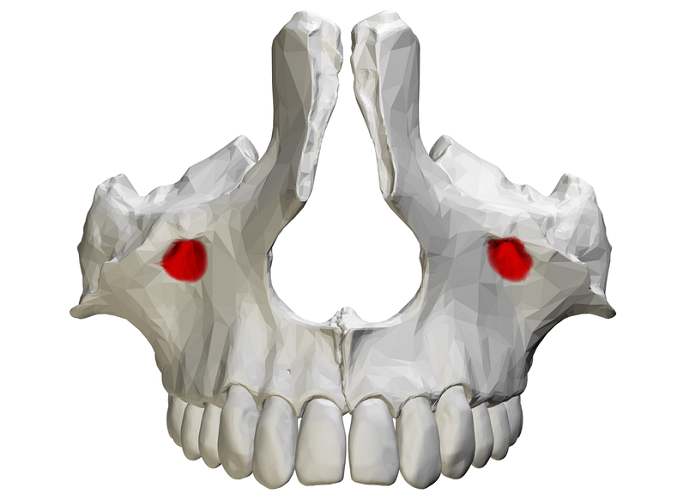 infraorbital foramen foramina maxilla maxillary bone