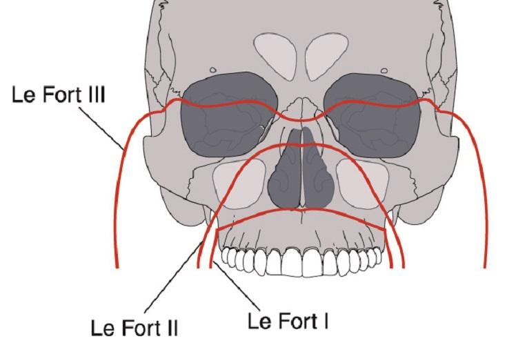 le fort I II III fracture facial bones