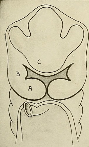 frontonasal maxillary mandibular prominence fetus fetal