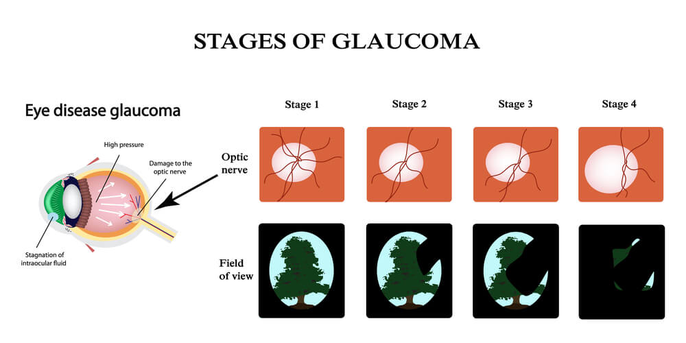 The stages of optic nerve glaucoma