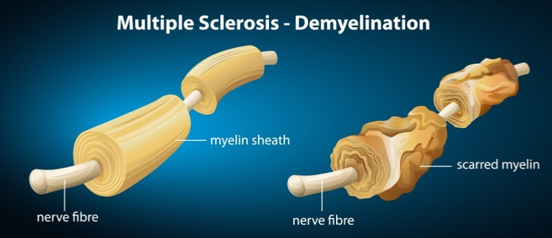 graphic of multiple sclerosis