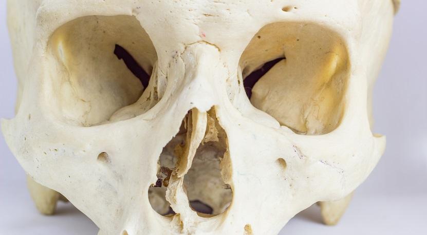 orbit orbital bones cavity eye sockets