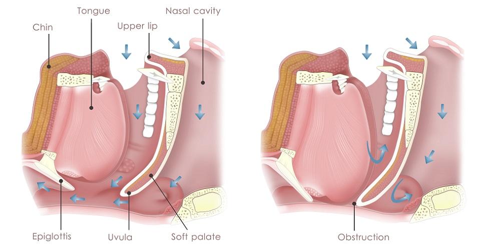 OSAS obstructive sleep apnea apneu syndrome