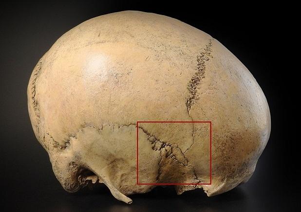 pterion frontal bone sphenoid parietal temporal sutures