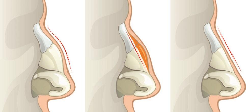 rhinoplasty nasal bone bones cartilage corrective surgery cosmetic plastic