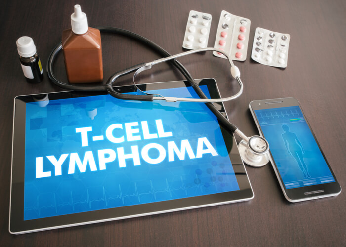 Tablet saying T cell lymphoma with stethoscope on top