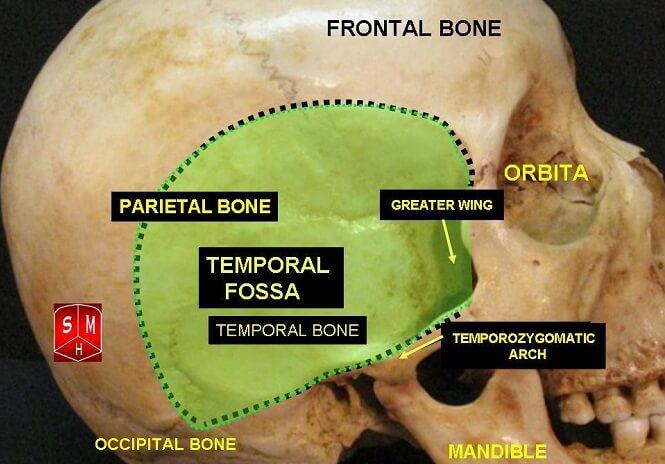 temporal fossa parietal frontal temporal sphenoid bone