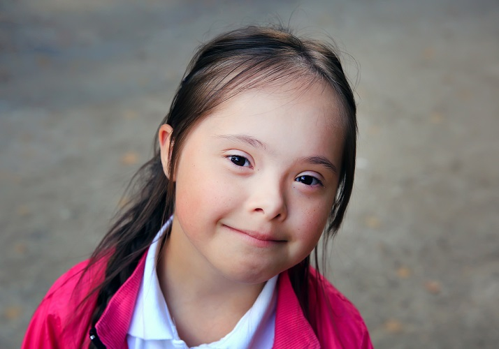 trisomy 21 down down's syndrome absent nasal bones hypoplasia genetic