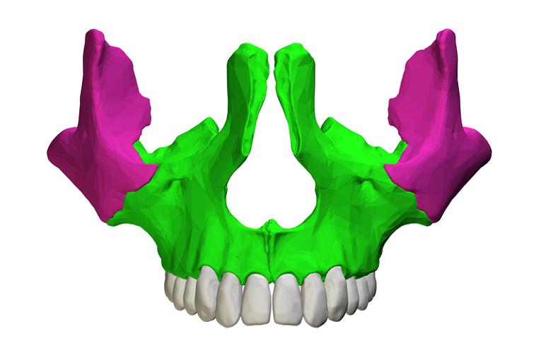 zygomaticomaxillary suture maxilla bone zygomatic cheek