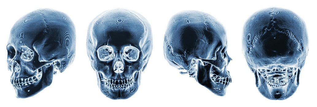 CT skull orbit maxillae mandible dental frontal temporal zygomatic bone