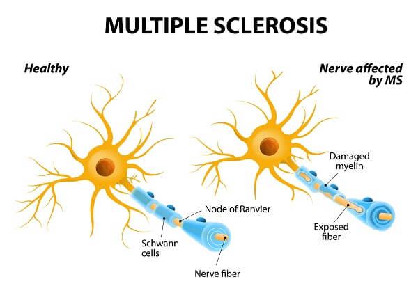 Schwann Cells | Biology Dictionary
