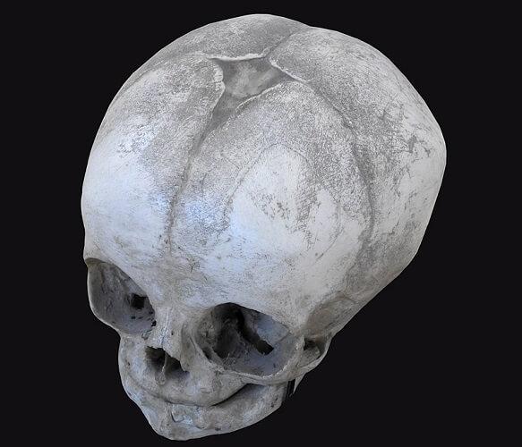 anterior fontanelle baby skull newborn