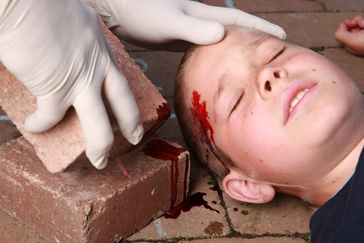 head wound child skull fracture