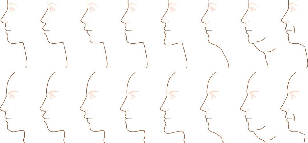 chin shapes underbite overbite pointed square mandible mandibular