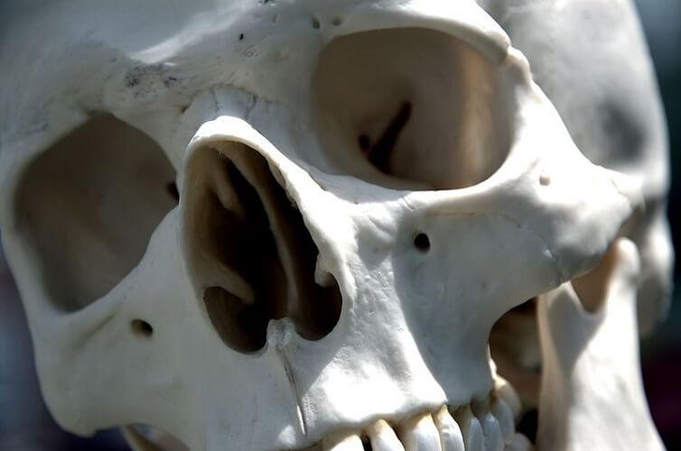 close up skull facial bones zygomatic nasal maxilla frontal