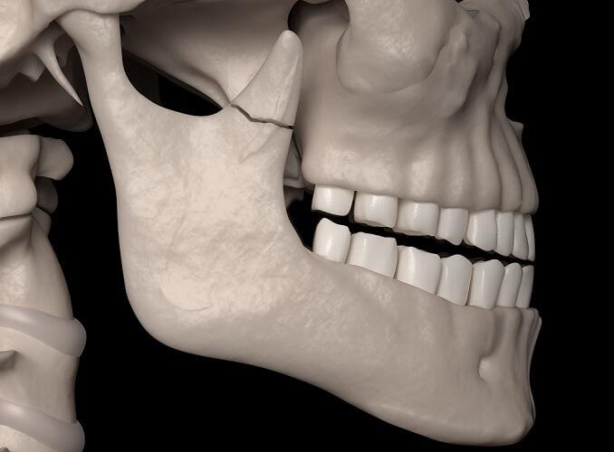 coronoid process mandible fracture