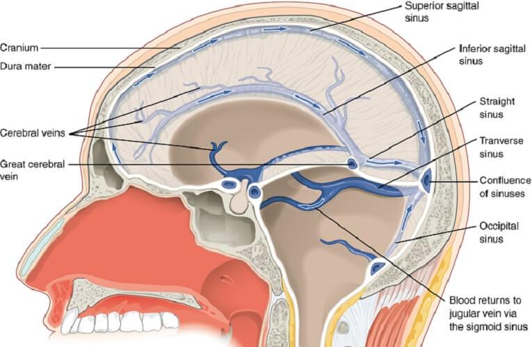 cranial bones sinuses sinus dural venous cerebrospinal fluid blood subarachnoid
