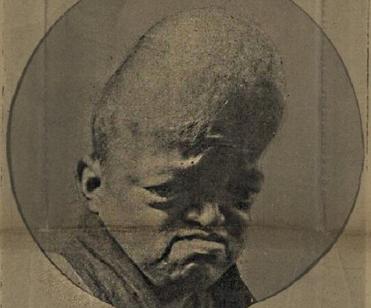 craniosynostosis cranial bones fontanelle