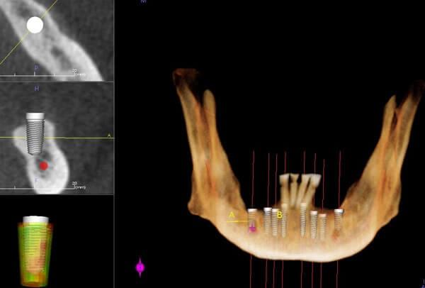 mandible CT 3D facial bones bone dental implants