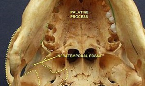 infratemporal fossa zygomatic bone maxilla palatine