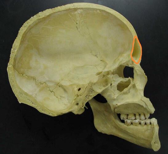 cranial bones facial frontal sinus bone temporal occipital parietal maxilla mandible nasal