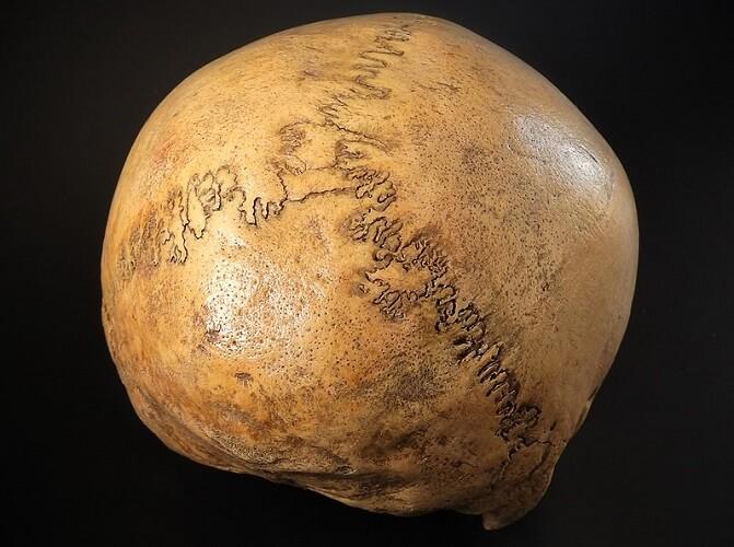 lambda suture fontanelle skull