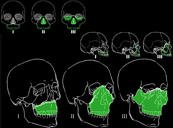 lefort le fort fracture I II III facial bones