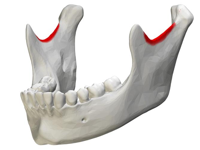 mandibular notch mandible rami ramus coronoid condyloid process