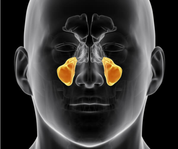 graphic representation of maxillary sinuses