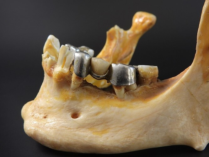 mental foramen mandible body chin