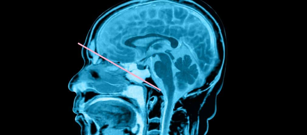 mri skull brain brainstem cerebellum cerebrum tongue ventricles