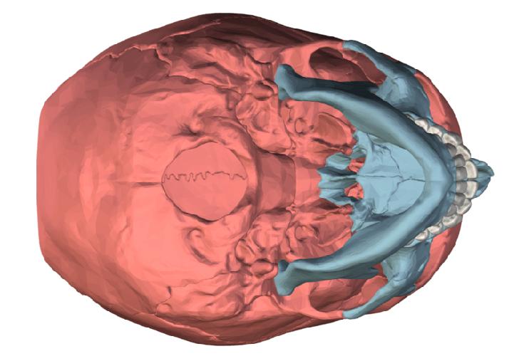 neurocranium viscerocranium cranial facial bones skull