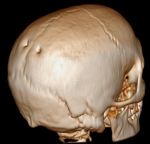 parietal bone foramen foramina