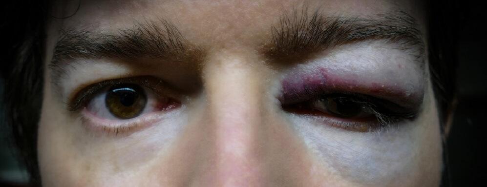 orbit bone zygomatic bones zygoma trauma surgery eye bloodshot punch