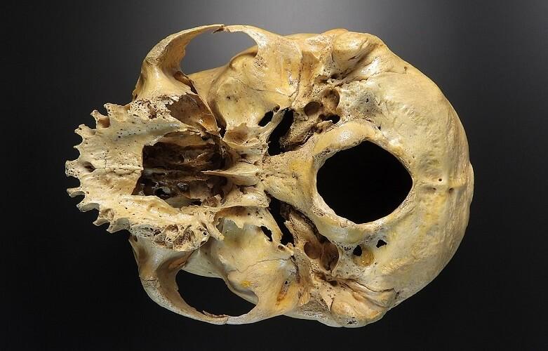 skull base human cranial bones foramen magnum zygomatic arch maxilla